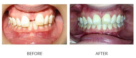 Case 2 - Large diastema